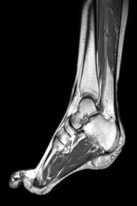 Мрт голеностопного сустава консультауия специалиста может ли болеть сустав если много работаеж на компьютер