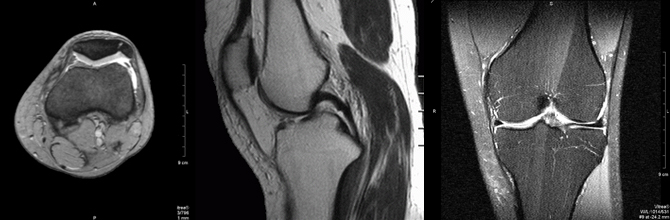 Мрт коленного сустава цао снятие боли в суставах лечение
