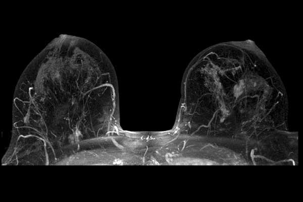 Снимок МРТ молочных желез